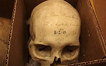 Lappflickan Maria Greens kranium på Lunds historiska museum.