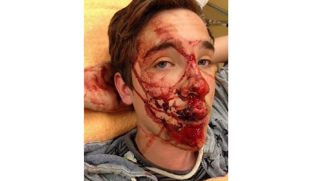 Lucas Haugen efter olyckan ( privat bild)