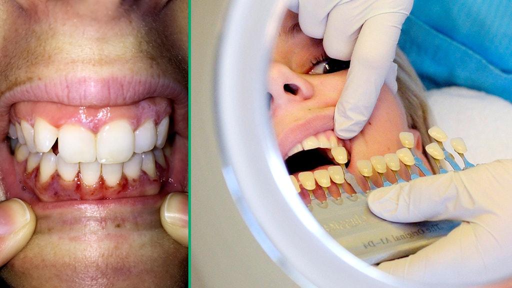 En person i en spegel som jämför sina blekta tänder med oblekta tänder