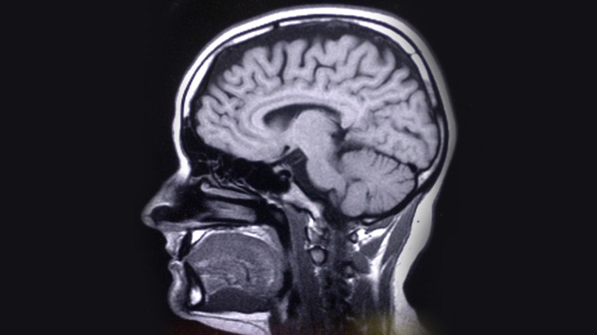 Jag är hjärnforskare