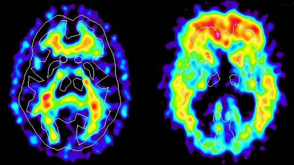 En hjärna hos en person drabbad av Alzheimers sjukdom jämfötr med hjärnan hos en frisk person.